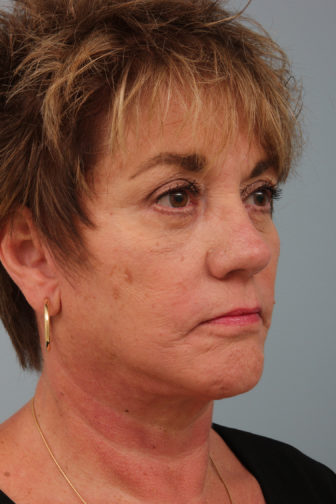 Closeup of a 64 year old female showing firm skin in her lower face after a deep plane facelift procedure