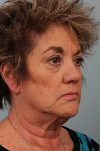 Closeup of a 64 year old female showing deep lines of wrinkles and saggy skin before a deep plane facelift surgery