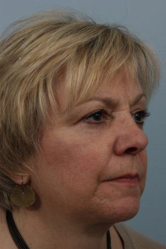 Close up photo of female showing slender neck skin and tightly stretched facial skin after weekend neck facelift