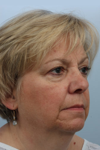 Close up of female with blonde hair showing saggy neck and face skin before weekend facelift procedure