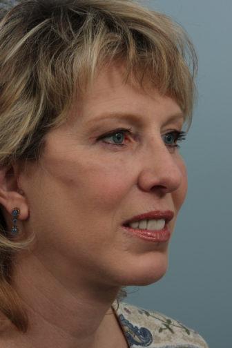 Closeup of brunette female showing tighter under eye skin and a more slender neck after a weekend facelift procedure