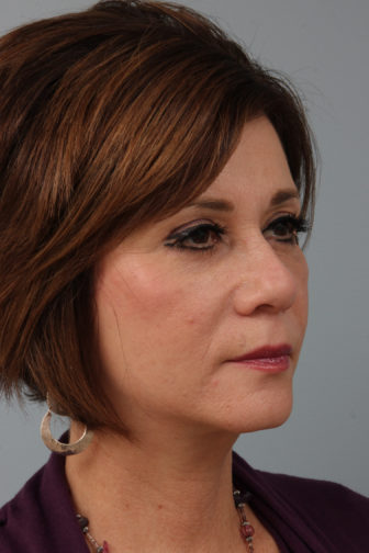 Close up of a female wearing a purple blouse showing tighter skin below her eyes and on her neck after weekend facelift