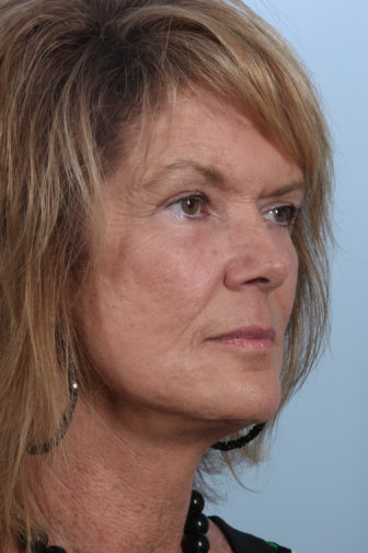 Oblique view of a female wearing a necklace showing firm skin on her face after having facial fat transfer plastic surgery
