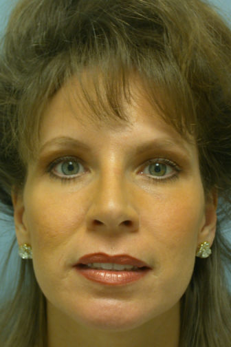 Closeup of a female with tightened skin on her forehead and lower eyes after endoscopic brow/midface lift surgery