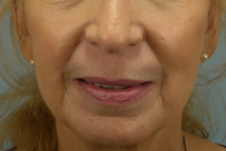 Closeup of a 67 year old female after CO2 laser surgery, showing firm skin on her nose, chin, and mouth area
