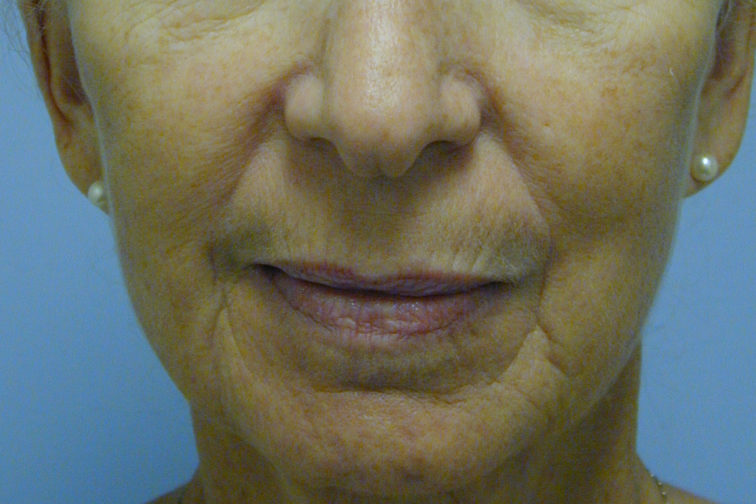 Closeup of a 67 year old female with deep lines around her mouth through her chin before CO2 laser surgery