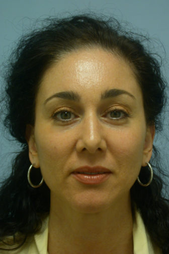 Closeup of a female's frontal view with black hair showing refreshed and tighten skin on her upper eyelids after a brow lift procedure
