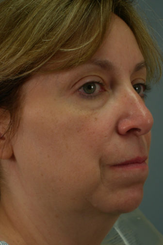 Closeup of a female with blonde hair showing plump skin from her cheeks to her neck before weekend facelift procedure