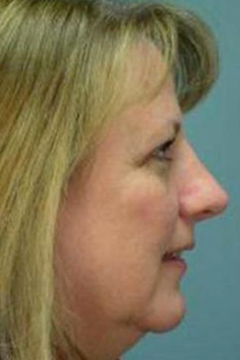 Closeup of a middle aged female with blonde hair, showing her nose smaller in size after rhinoplasty surgery