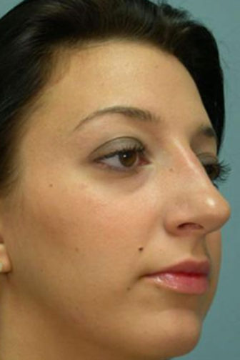 Closeup of a 30 year old female showing smooth skin on the tip of her nose after rhinoplasty surgery