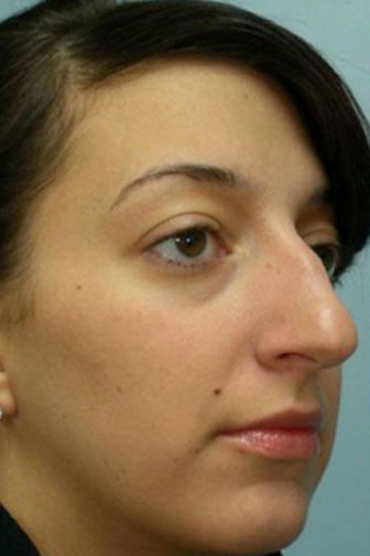 Closeup of a 30 year old female showing extra cartilage on the tip of her nose before rhinoplasty surgery
