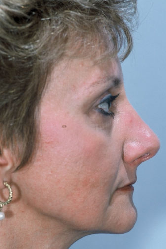 Side profile of a middle aged female after a rhinoplasty surgery showing a shorter nose with prominent contour