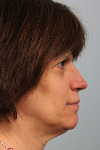 Closeup of a middle aged female showing smaller size and upright angle nose after a rhinoplasty plastic surgery