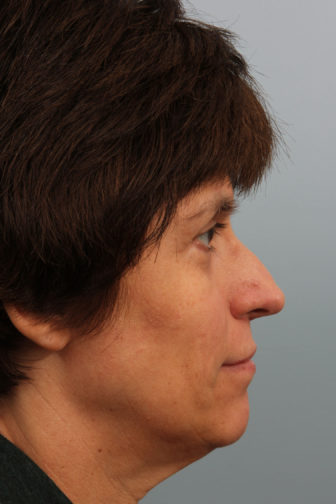 Closeup of a middle aged female showing an elongated and bent nose before a rhinoplasty plastic surgery