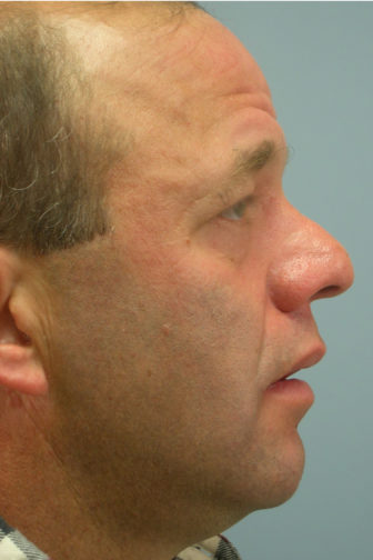 Side profile of a 53 year old male before a revision rhinoplasty surgery showing a crooked nose