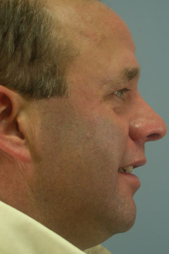 Side profile of a 53 year old male after a revision rhinoplasty surgery showing a smoother and straighten shaped nose