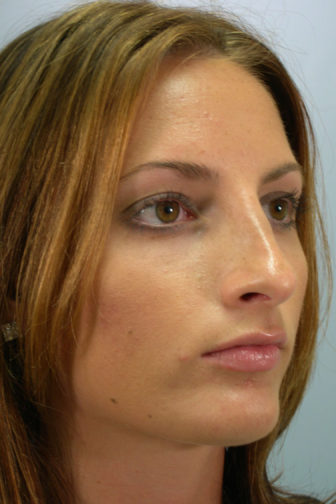 Closeup of a female with brown eyes showing a smoother shaped nose after a rhinoplasty procedure