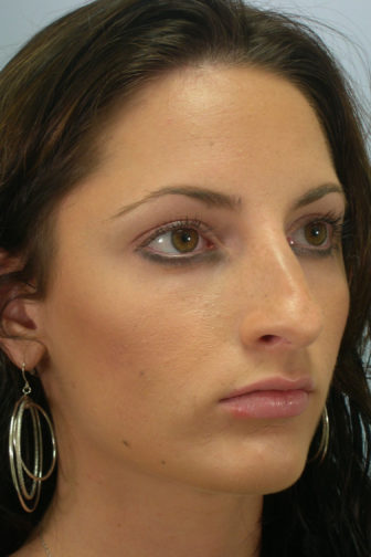 Closeup of a female with brown hair showing a large nose before a rhinoplasty procedure