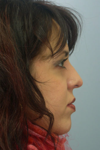 Side profile of a female showing an aligned nose with cartilage on the tip after rhinoplasty surgery