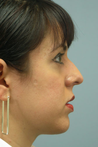 Side profile of a female showing a large, asymmetrical angle of her nose before rhinoplasty surgery