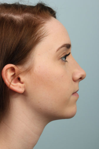 Side profile of a 21 year old female showing a perfect angle of her nose with a smooth shape after rhinoplasty surgery