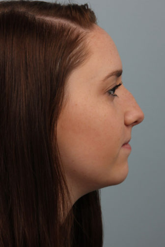 Side profile of a 21 year old female showing a masculine nose before rhinoplasty surgery