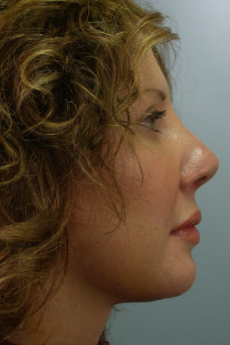 Side view of a middle aged female showing a straighter nose after a revision rhinoplasty