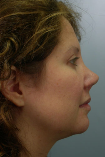 Side view of a middle aged female showing a pointed nasal tip and misalignment before revision rhinoplasty