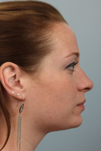 Closeup of a female with brown hair showing an upright angle of her nasal tip after an endonasal rhinoplasty surgery