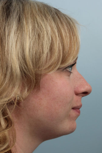 Closeup of a blonde female with a drooping nasal tip and hanging columella before endonasal rhinoplasty surgery