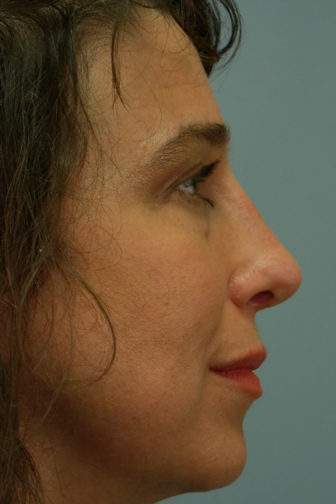 Closeup of a female with black hair showing an upright angle and narrow tip of her nose after a rhinoplasty surgery