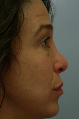 Closeup of a female with jet black hair showing a wide and bent angle of her nose before a rhinoplasty surgery