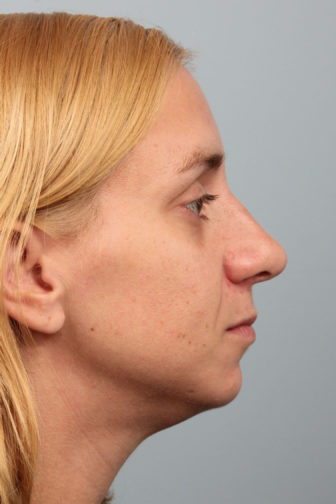 Closeup of a female wearing a black shirt showing well-proportioned nose angle after a revision rhinoplasty surgery