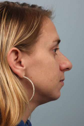 Closeup of a female wearing gold hoop earrings showing misshapen angle of her nose before revision rhinoplasty surgery