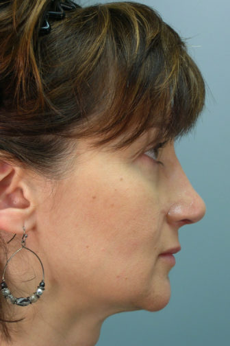 Side profile of a female showing a straighter nose after a revision rhinoplasty surgery