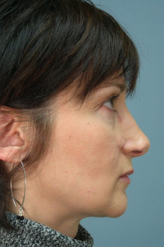 Side profile of a female showing a droopy nasal tip with excess cartilage before revision rhinoplasty