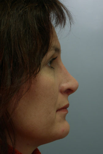 Closeup of a female showing straighter shape of her nose after nasal reconstructive rhinoplasty plastic surgery