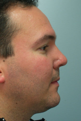 Closeup of a male with a black jacket showing an upright pointed angle of his nose after revision rhinoplasty surgery