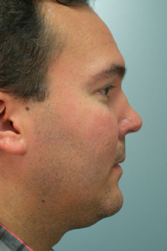 Closeup of a male with a polo shirt showing deformed shape and concave angle of his nose before revision rhinoplasty