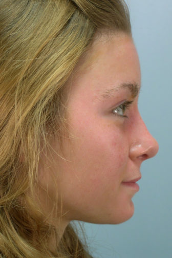 Side profile of a 24 year old female showing a smoother nose with extra cartilage after rhinoplasty surgery