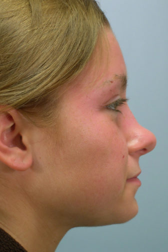 Side profile of a 24 year old female showing a deformity in her nose before rhinoplasty surgery