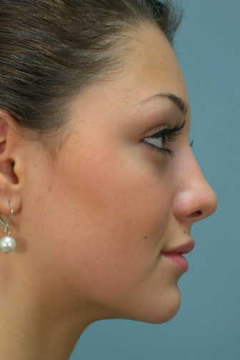 Closeup of a female with black hair showing a straight and upright angle of her nose after rhinoplasty surgery
