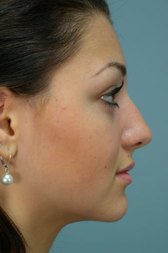 Closeup of a female with black hair showing a misaligned angle and bent nose before a rhinoplasty plastic surgery