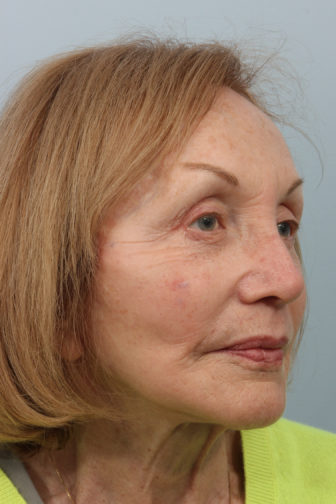 Closeup of female with smooth skin along her jowls after weekend facelift procedure