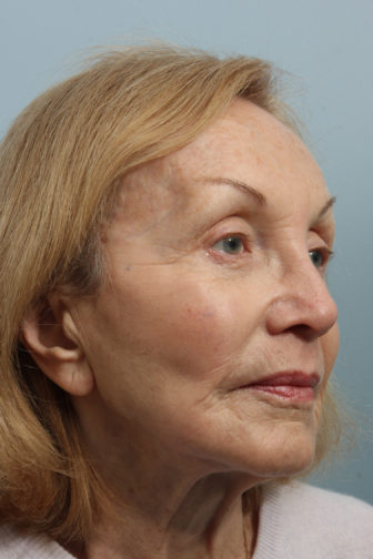 Closeup of elderly female with noticeable wrinkles from her forehead to her cheeks before weekend facelift surgery