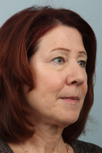 Closeup of a female with red hair showing under eye bags and loose midface and neck skin before weekend facelift procedure