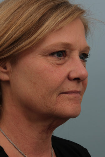 Closeup of female side profile showing noticeably saggy facial and neck skin before weekend facelift procedure