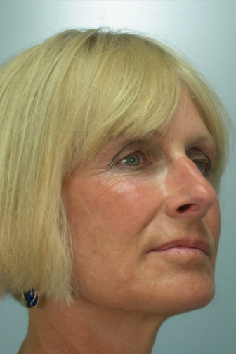 Closeup of female side profile showing tighten skin around her jowls and under eyes after weekend facelift surgery