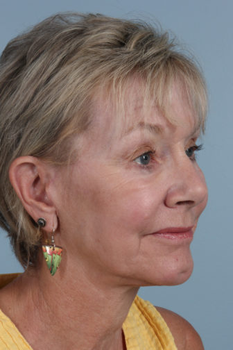 Closeup of an elderly female with tighter jowl and neck skin and less wrinkles on her face after a weekend facelift