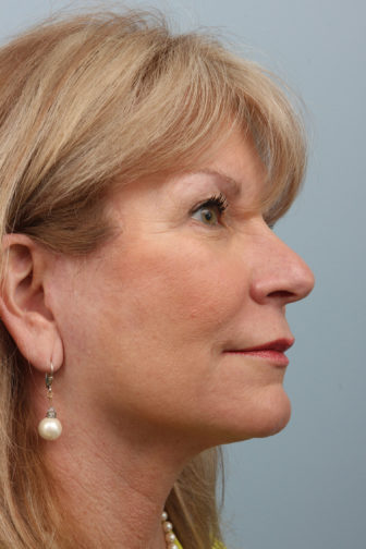 Closeup of blonde female wearing earrings, showing firm skin in her midface and neck after weekend neck lift surgery